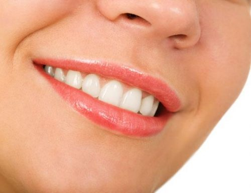 Consigli per i disturbi a denti, bocca e gengive