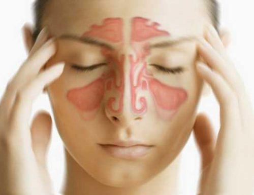 Sinusite, sintomi e rimedi omeopatici