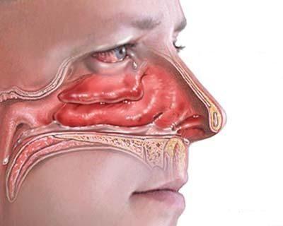 Rinite allergica, sintomi e rimedi omeopatici